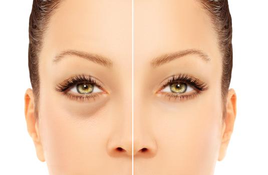 Тъмни кръгове под очите - причини, прикриване и лечение