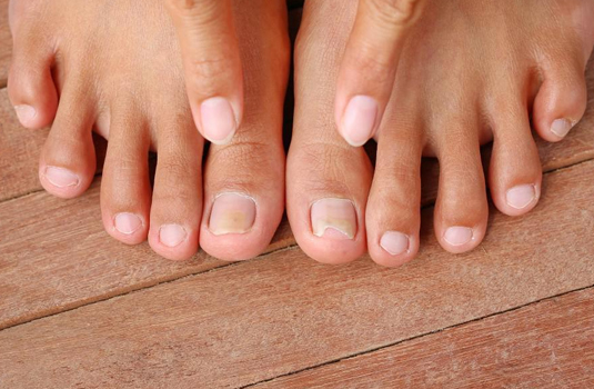 Nail fungus - useful tips, folk medicine and prevention